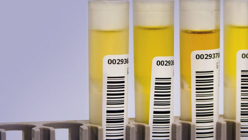 States Move to Ban Synthetic Urine